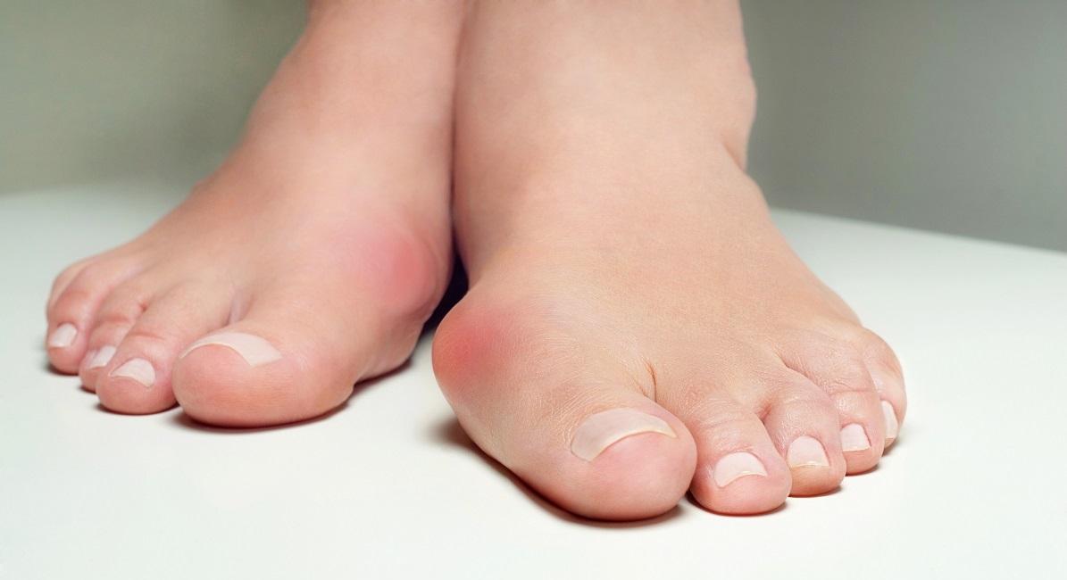 Hallux valgus fötter